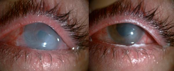 infección ocular por blufferitis