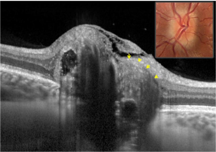Eliminarea undelor radio a neoplasmelor: cum și ce se efectuează